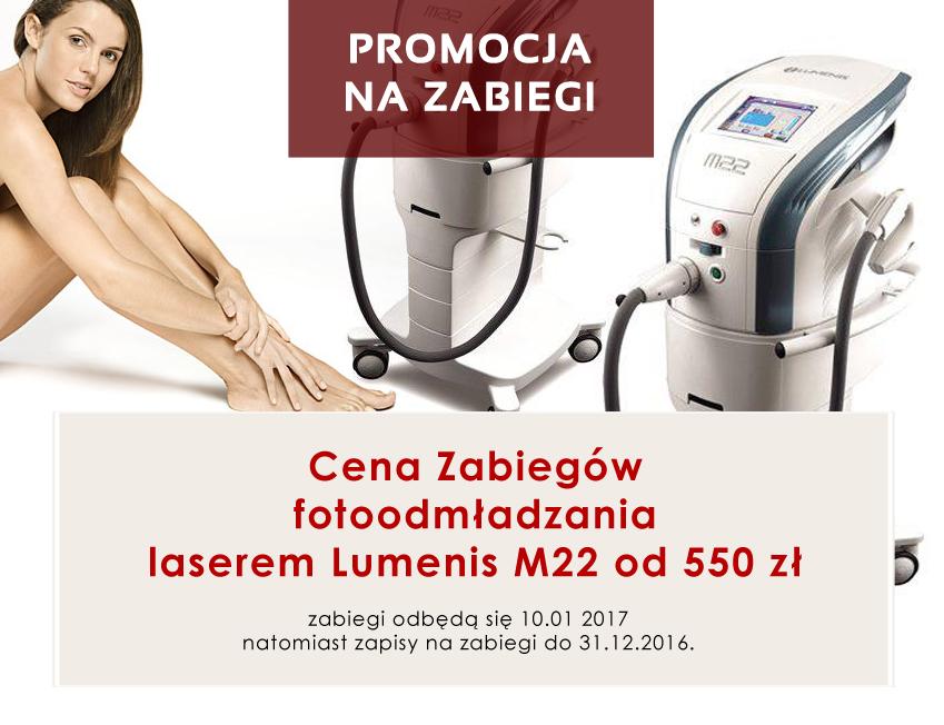 laser-m22